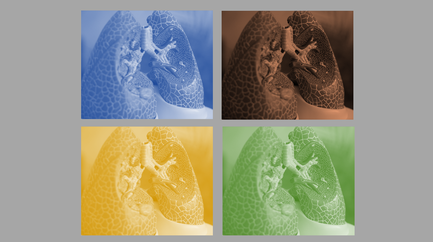 Multiple faces of small-cell lung cancer